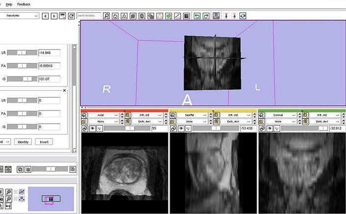 3D Slicer picture or screenshot