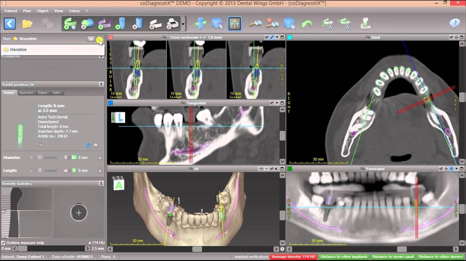 coDiagnostiX picture or screenshot
