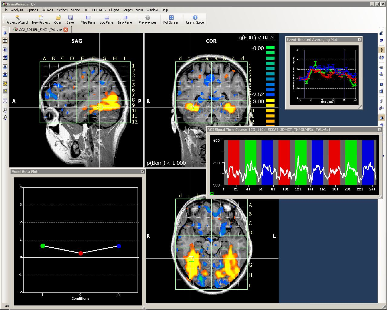 Turbo-BrainVoyager picture or screenshot