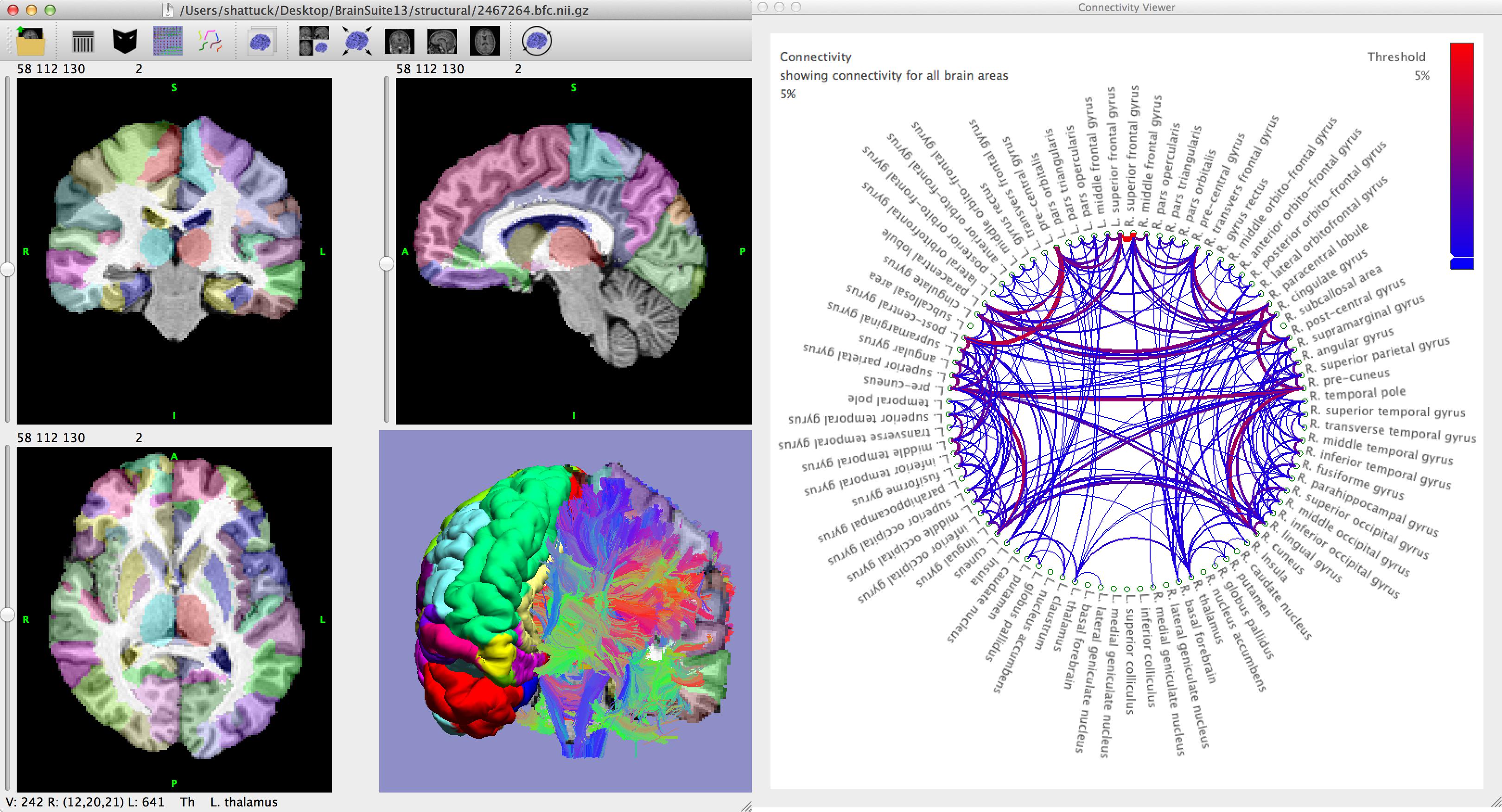 BrainSuite picture or screenshot